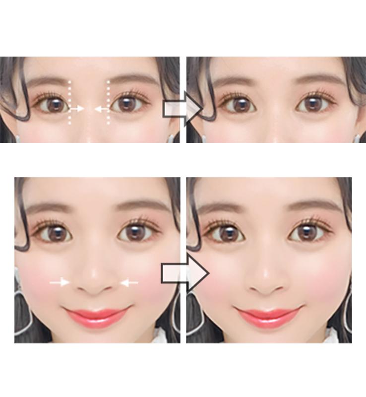 (上)目頭の距離を狭めるイメージ(下)鼻のサイズを小さくするイメージ